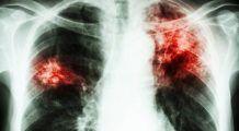 Tuberculoza amenință din nou Europa. Care sunt primele victime?
