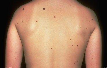 Cum îți dai seama dacă alunițele tale se vor transforma în cancer de piele