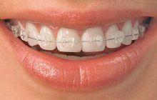 Aparatul dentar la adulţi – eficient sau nu?