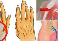 Acest INGREDIENT IEFTIN este mai eficient decât orice medicament în tratarea durerilor articulare