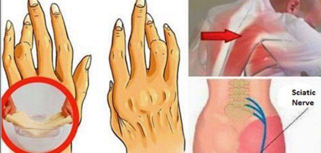 articulația genunchiului rupt durere de flexie după antrenament