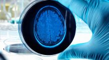 Aproximativ 220 de milioane de oameni au cel puțin o boală neurologică. Iată care sunt cele mai răspândite afecțiuni ale creierului