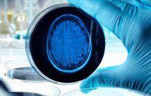 Boala care îți distruge creierul. Primele semne apar cu ani înainte