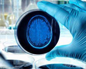 Motivul pentru care creierul îmbătrânește prematur
