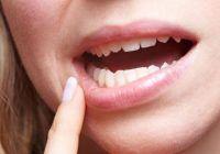 Ce este și cum scapi de gingivită
