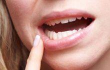 Ce boli grave pot anunța sângerările gingiilor