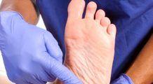 Ai fost DIAGNOSTICAT cu DIABET? Nu IGNORA aceste semnale de alarmă pe care ți le transmite piciorul tău! Se poate ajunge și la AMPUTAȚII