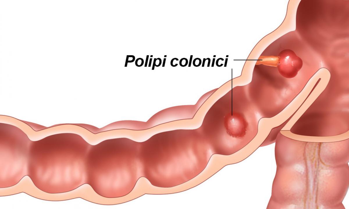 polipii de colon poate provoca pierderea în greutate)