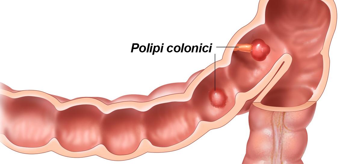 Polipii colonici: cum îi depistezi și ce să faci ca să nu se transforme în cancer