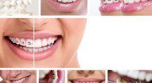 Cum alegi aparatul dentar potrivit