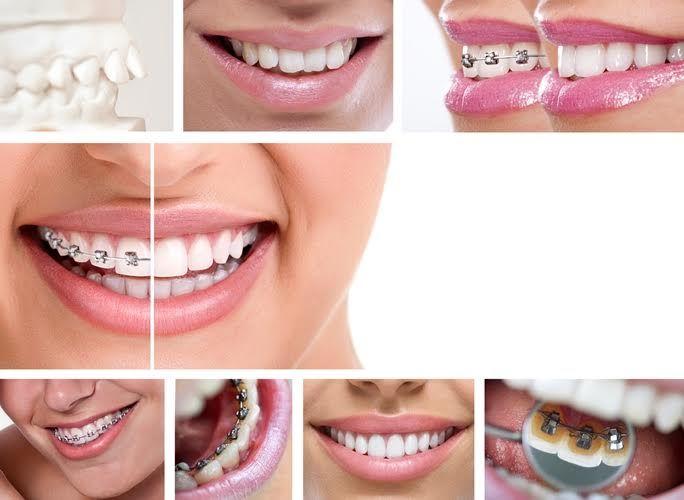 Patru lucruri pe care trebuie să le știe orice adult care poartă aparat dentar