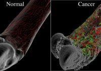 """Prof. Univ.Dr. Rainer Kotz: """"Cancerul osos la copii poate fi tratat cu succes. 70-90% din cazuri se vindecă"""""""