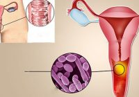 Infecția pe care o au 75% dintre femei. Primele simptome și metode de tratament