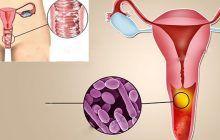 Infecția pe care o au 75% dintre femei. Simptome și remedii naturale