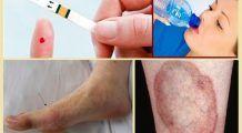 Patru simptome ale diabetului pe care toată lumea le ignoră