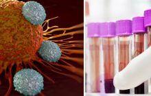 Leucemia ar putea fi vindecată datorită unei noi descoperiri