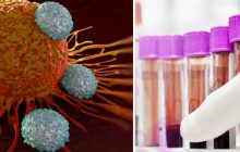 De la leucemie la ciroză. Boli grave ascunse de banala anemie