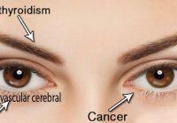 Simptome banale care pot ascunde boli grave