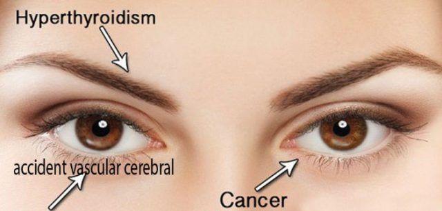 10 simptome ale cancerului de ochi