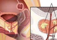 12 Semne timpurii ale cancerului de PROSTATĂ pe care niciun BĂRBAT nu ar trebui să le IGNORE