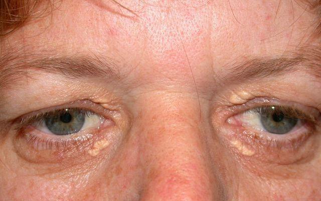 Patru semne de alarmă că ai nivelul trigliceridelor foarte mare