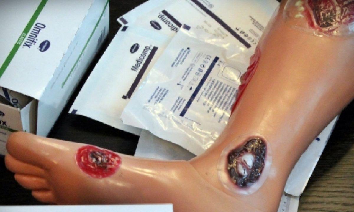 cum se tratează rănile varicoase