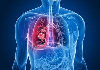 Află printr-un test online dacă ai risc de a face cancer pulmonar, cea mai răspândită boală oncologică printre români