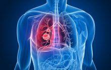 Pacienții cu cancer pulmonar metastatic ar putea primi un tratament inovator în locul chimioterapiei