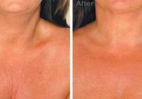 Uite cum poți elimina natural ridurile de pe piept și din jurul gâtului