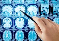 A fost aprobat primul și unicul medicament cu beneficii majore pentru pacienții cu acest tip de scleroză multiplă