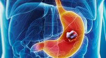 Cum se poate ajunge de la gastrită la cancer