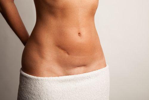 Cum modifică nașterea prin cezariană corpul femeilor?