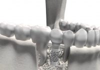 Avantajele implantului dentar Zimmer Trabecular Metal