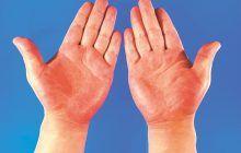 Ce se întâmplă cu mâinile tale dacă ai probleme cu ficatul? Unul din simptomele cirozei hepatice se observă în palme