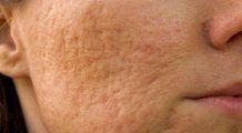 Cum scăpăm de cicatricile lăsate de acnee