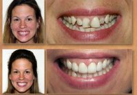 Cinci probleme ale dinților de care scăpați cu ajutorul fațetelor dentare