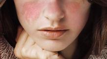 Când sistemul imunitar începe să atace și să distrugă celulele și organele sănătoase. Boala cu o mie de fețe care afectează, mai ales, femeile