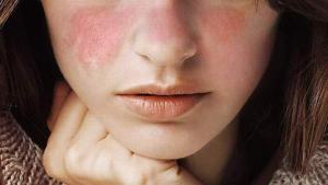 Lupusul, boala cronica inflamatorie autoimuna, greu de diagnosticat si care nu se vindeca niciodata