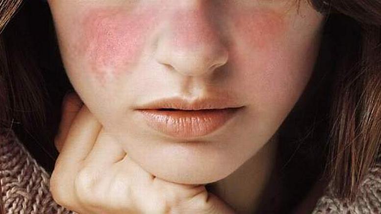 Azi e Ziua Mondială a Lupusului. Ce trebuie să știți despre această boală