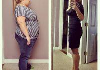 Ce trebuie să știi despre micșorarea stomacului, procedura care te scapă de zeci de kilograme