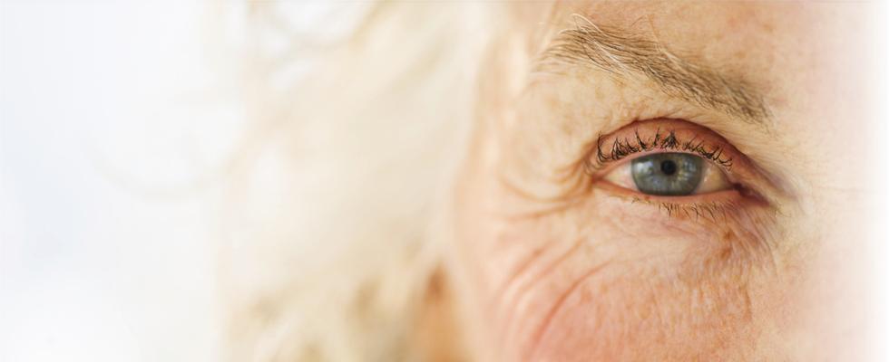 Primul semn al cataractei, principala cauză de orbire. Peste 70% dintre cei care ajung la această vârstă, fac boala