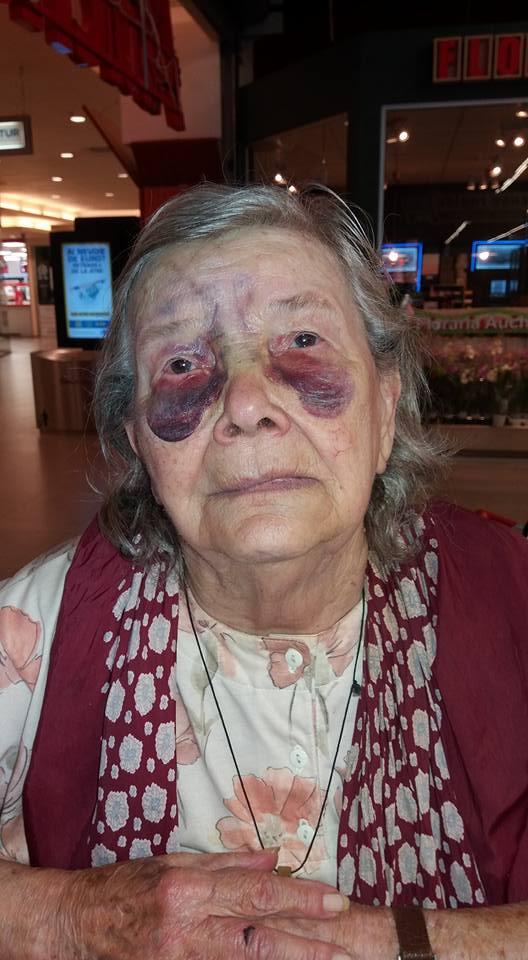 """Aceste imagini cu o bătrânică bătută crunt au revoltat internauții. """"Cum să-i faci așa ceva unui părinte?"""""""
