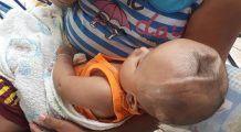 Un bebeluș de opt luni a fost abandonat de părinți pentru că s-a născut așa