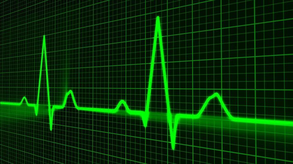 PULSUL crescut TRIPLEAZĂ riscul de ACCIDENT VASCULAR CEREBRAL. Care sunt valorile normale și cum îți poți măsura singur ritmul cardiac