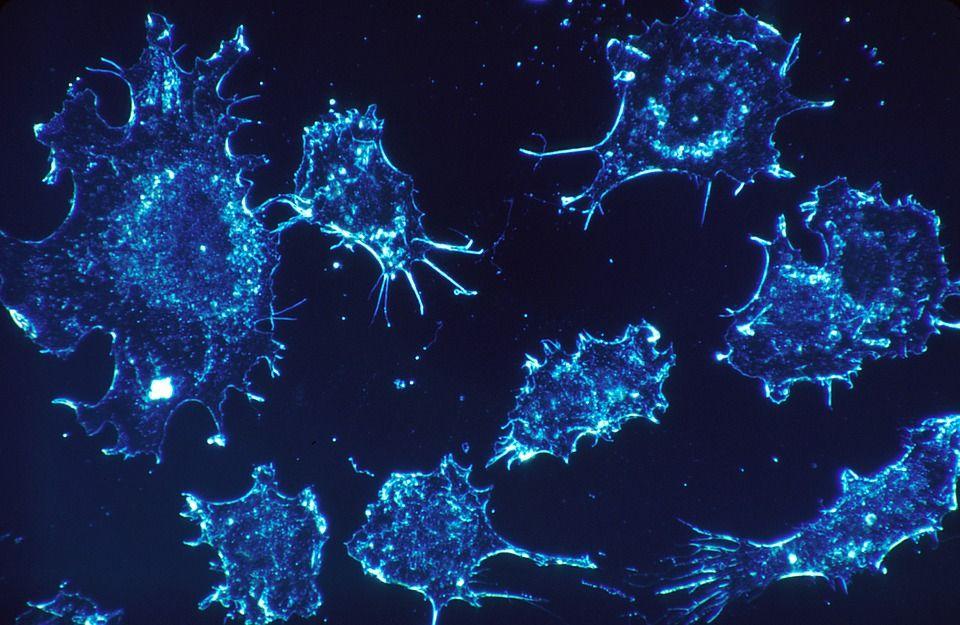 Alimentul care împrăștie cancerul în tot organismul