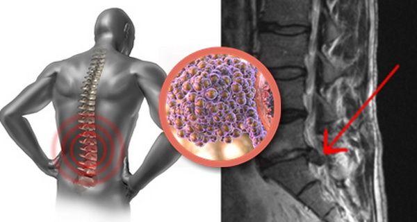 O nouă opțiune de tratament inovator compensat pentru pacienții cu un tip de cancer foarte agresiv