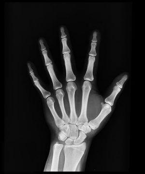 Medicamente, afecțiuni și băuturi care fragiliează oasele și declanșează osteoporoza