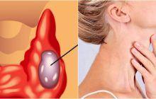 10 semne că ai probleme cu tiroida
