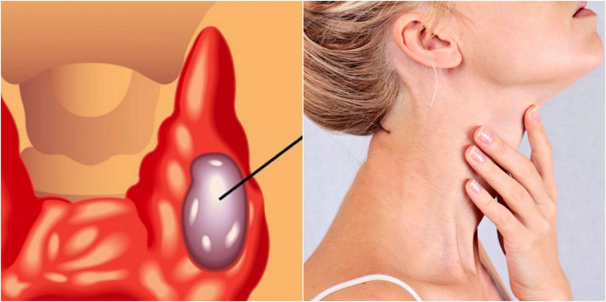 """Endocrinolog: """"Incidența cancerului de tiroidă a crescut exponențial!"""" Cine are cel mai mare risc și care sunt simptomele"""