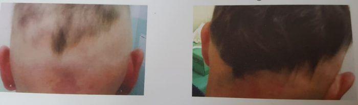 Tratamentul inovator și natural al alopeciei. Rezultatele apar imediat